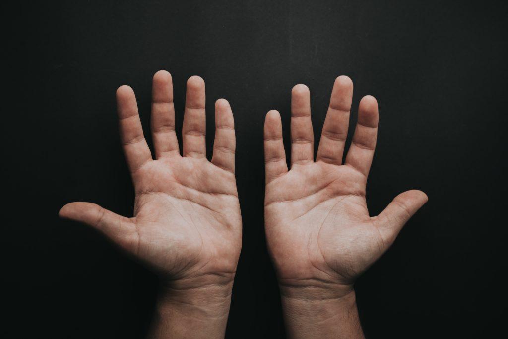 Andere Hände